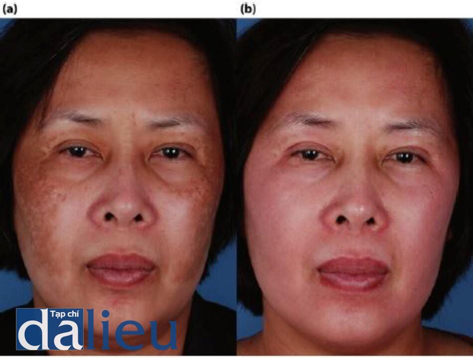 Hình 7.4 (a) Trước điều trị. Bệnh nhân có làn da châu Á lệch màu (trung bình), dày, và không dâu. cô được chẩn đoán là bị nám da. (b) Môt năm sau. Bệnh nhân được điều trị trong 5 tháng với zo Medical dưa trên HQ, sau đó là lột sầu có kiểm soát ZO đến lớp hạ bì nhú. Bảo trì bao gồm Phục hồi sức khỏe làn da không dựa trên HQ.