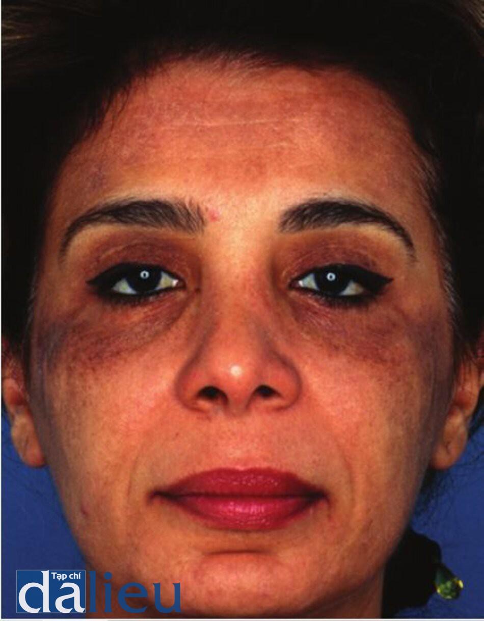 Hình 11.10 Một bệnh nhân có da được phân loại là trắng lệch màu (sẫm màu), dày trung bình, và không dầu sau khi điều trị laser phân đoạn C02 quanh hốc mắt mà không chăm sóc da trước đó. Nhận thấy tình trạng tăng sắc tố sau viêm.