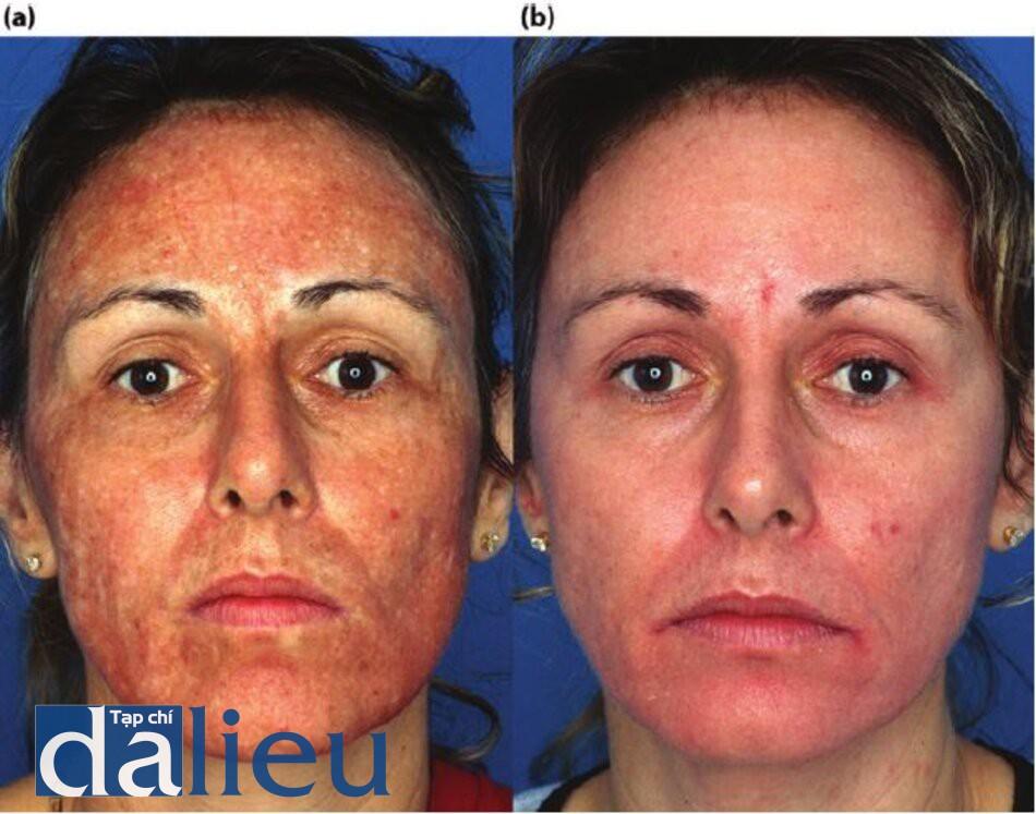 Hình 11.11 (a) Một bệnh nhân sau khi tái tạo bề mặt bằng laser phân đoạn C02 mờ không căn dưỡng da trước và sau thủ thuật. Nhận thấy tình trạng tăng sắc tố' sau viêm, (b) Bệnh nhân sau sáu tuần tích cực phục hồi sức khỏe da dựa trên HQ. Nhận thấy kết cấu da được cải thiện và đều màu.