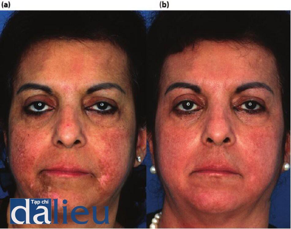 Hình 11.12 (a) Một bệnh nhân sau khi tái tạo bề mặt bồng C02 mờ không căn dưỡng da trước đó. Nhận thấy sự tăng sắc tố và giảm sắc tố sau viêm, (b) Bệnh nhân 6 tháng sau khi tích cực phục hồi sức khỏe da dựa trên hydroquinone. Liru Sự Phục Hồi của tông màu da bình thường và tái tạo sắc tố của khu vực da bị mất sắc tố.