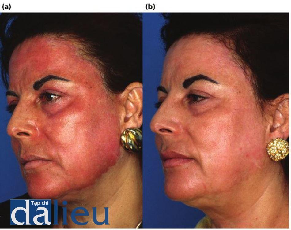 Hình 11.1 (a) Một bệnh nhân sau khi tái tạo bề mặt bằng laser phân đoạn C02 mồ không căn dưỡng da trước và sau thủ thuật. Nhận thấy tình trạng tăng sắc tố sau viêm, (b) Bệnh nhân sau 6 tuần phục hồi sức khỏe da tích cực dựa trên hydroquinone. Lưu ý kết cấu da được cải thiện và đều màu.