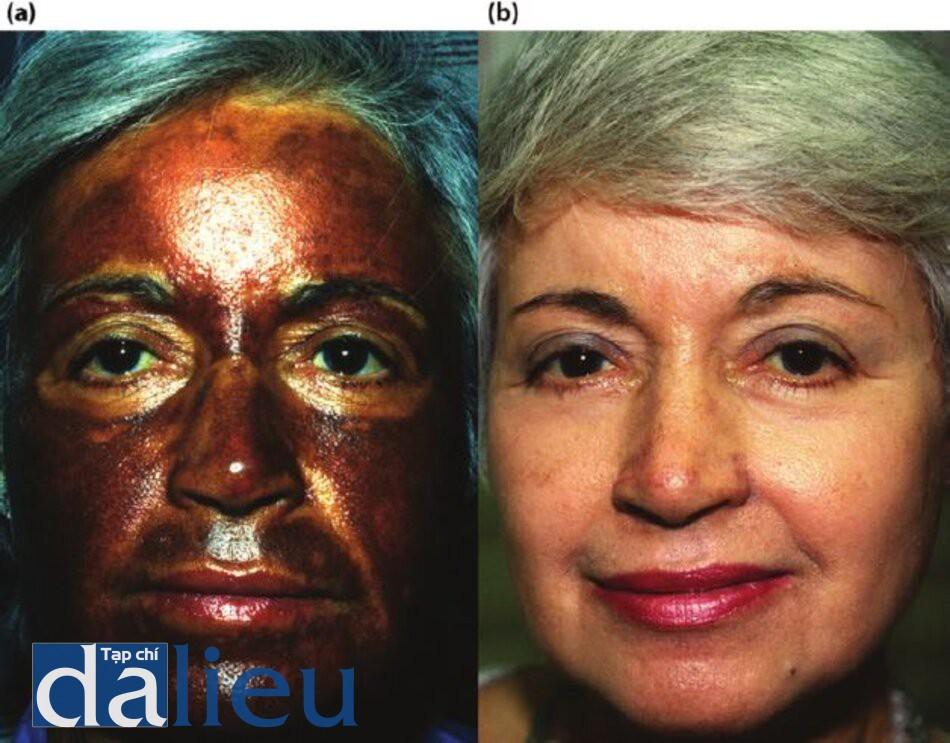 Hình 11.13 (a) Một bệnh nhân 6 tháng sau khi lột da với một chất không xác định. Chú ý đến tăng sắc tố' sau viêm nghiêm trọng và màu da bình thường xung quanh mắt. (b) Bệnh nhân 6 tháng sau khi tích cực phục hồi sức khỏe làn da dựa trên hydroquinone trong đó, một cuộc lột da sâu có kiểm soát zo hàng tháng đến lớp hạ bì nhú được thực hiện với tông sô ba lăn lộn. Chú ý phục hồi vẻ ngoài bình thường của da.