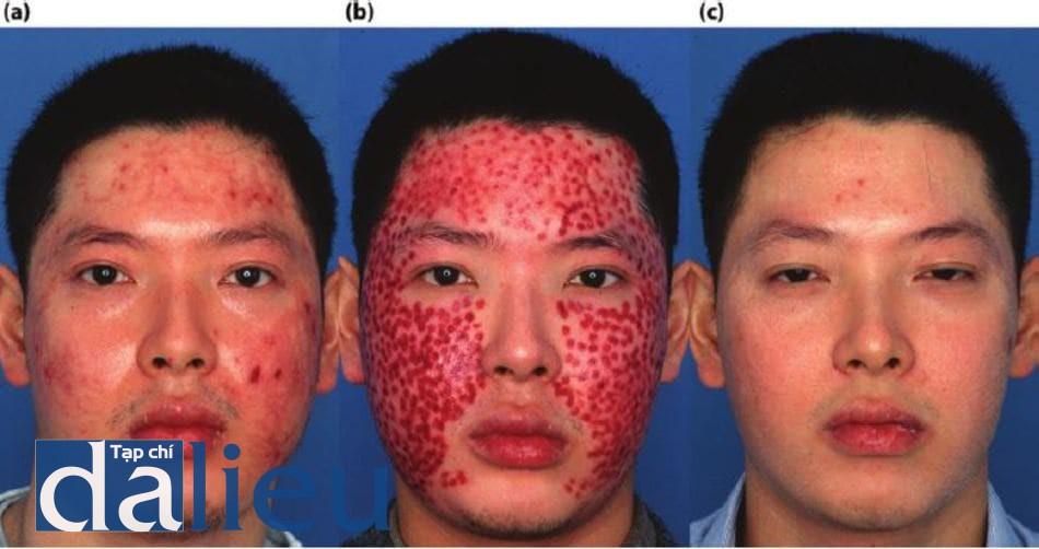 Hình 11.14 (a) Một bệnh nhân có phản ứng phì đại 6 tháng sau khi điều trị bằng laser phân đoạn C02 mà không cần dưỡng da trước đó. (b) Xuất hiện sau khi điều trị với laser đèn flash nhuộm xung (FLPD). (c) Một năm sau. Bệnh nhân áp dụng tích cực Phục hồi sức khỏe da không dựa trên hydroquinone để Ổn định và kích thích biểu bì. Bệnh nhân đã có bồn lăn điều trị FLOR và hai lần lột da kích thích zo Retinol. Liệuý kết cấu vồ vẻ ngoài bình thường của da.