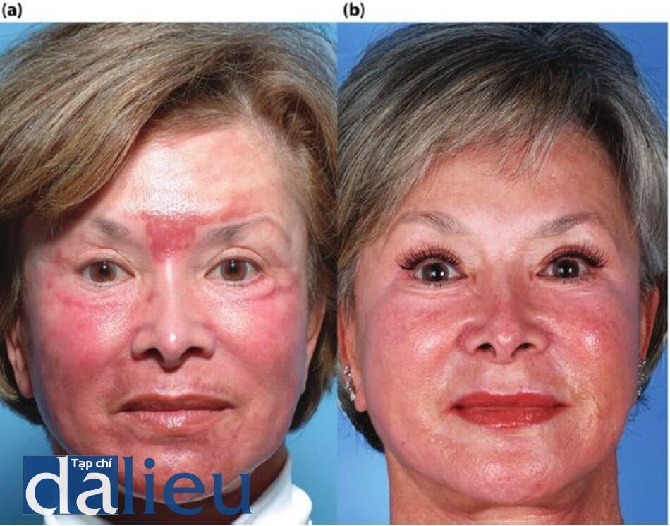 Hình 11.15 (a) Một bệnh nhân 3 tuần sau khi điều trị bằng laser phân đoạn C02 mà không dưỡng da trước đó. Nhận thấy phản ứng phì đại trên má và sẹo lồi sớm ở vùng mỹ tâm. (b) Bệnh nhân sau 8 tuần điều trị tích cực Phục hồi sức khỏe làn da không dựa trên hydroquinone, hai phương pháp điều trị laser nhuộm xung bồng đèn flash và tiêm steroid vào trong.