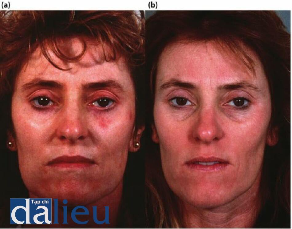 Hình 11.16 (a) Một bệnh nhân có phản ứng phì đại vồ hình thành sẹo lồi sớm 3 tuần sau khi lột TCA độ sâu trung bình mờ không căn dưỡng da trước đó. (b) bệnh nhân 5 tháng sau khi tích cực phục hồi sức khỏe da dựa trên hydroquinone trong khi ba lăn điều trị laser xung nhuộm bằng đèn flash đã được thực hiện vá steroid đã được tiêm. Chú ý phục hôi vẻ ngoài bình thường của da.