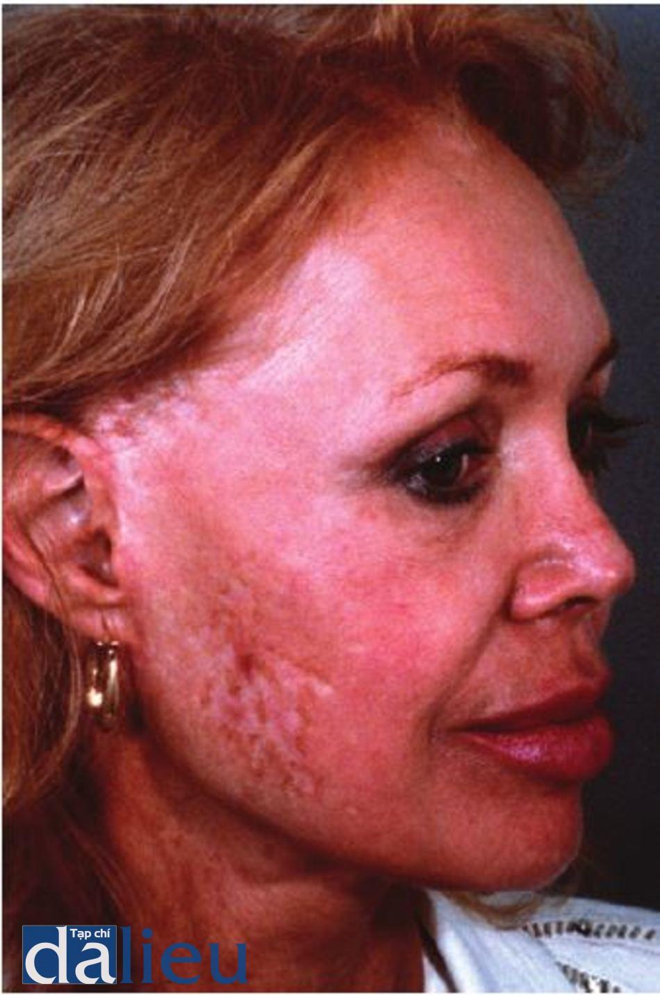 Hình 11.18 Bệnh nhân bị hoại tử và da bong tróc sau quá trình căng da mặt dẫn đến sẹo. Nhận thấy xơ hóa và mất sắc tô' trong khu vực hoại tử sau khi chữa lành