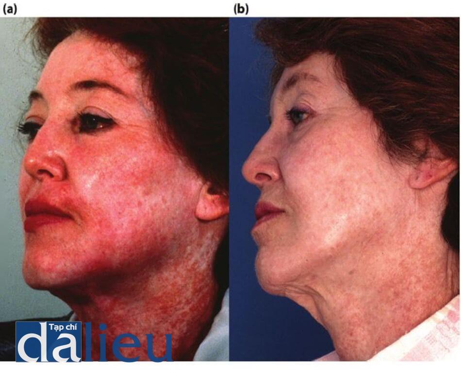 Hình 11.20 (a) Một bệnh nhân 6 tháng sau khi lột da bằng phenol. Lưu ý về sắc tổ, sự xuất hiện không đều của giãn mao mạch vồ ban đỏ. (b) Bệnh nhân sau khi phục hồi sức khỏe da không dựa trên hydroquinone, tiếp theo là ba lăm điều trị laser nhuộm xung đèn flash và một liệu pháp zo Retinol stimulation Peel. Chú ý cải thiện làn da (kết cấu) và giảm sắc tố vĩnh viễn.