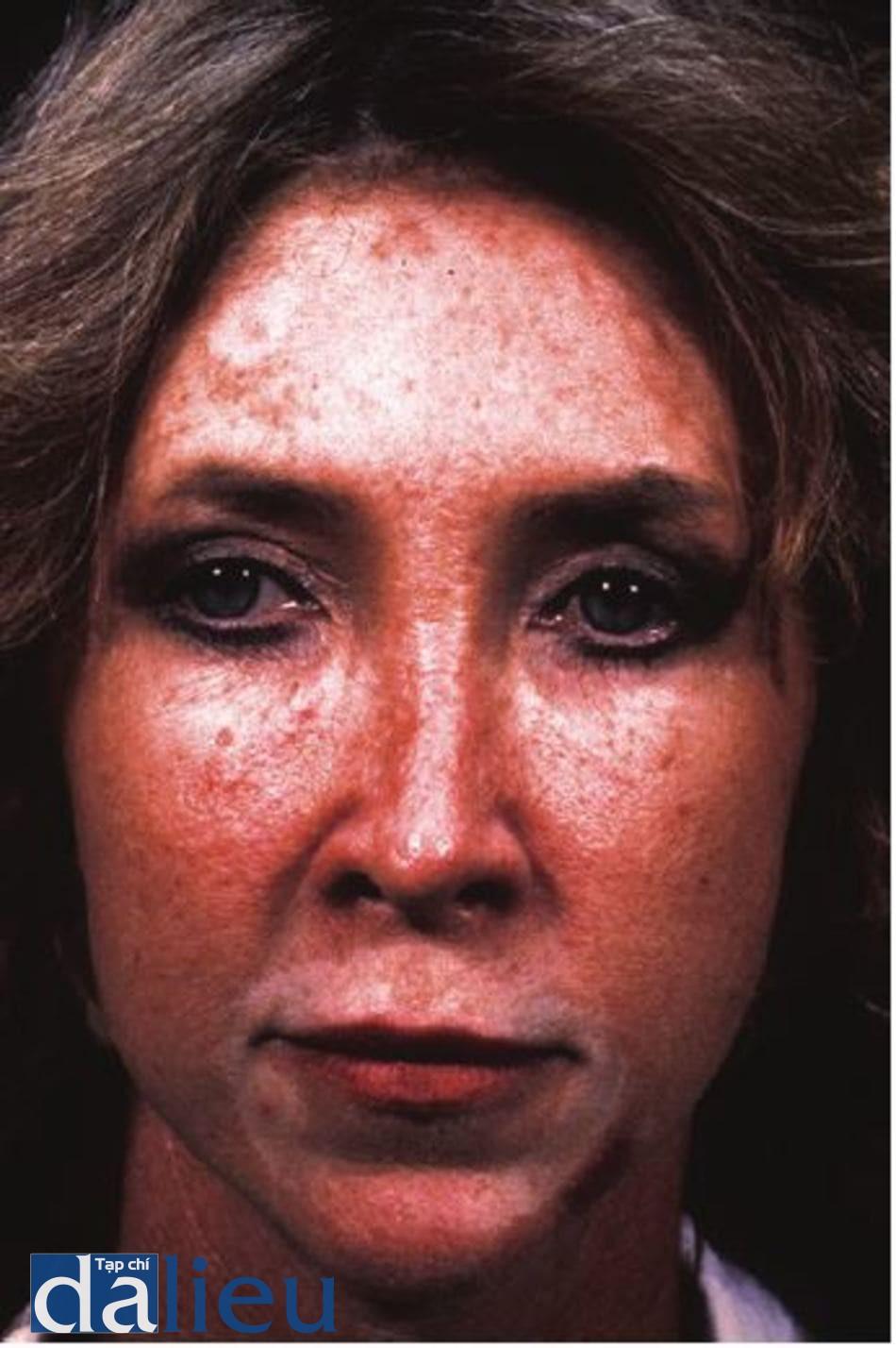 Hình 11.21 Một bệnh nhân cho thấy mất sắc tô' vĩnh viễn quanh miệng sau khi lột da khu trú bằng phenol.