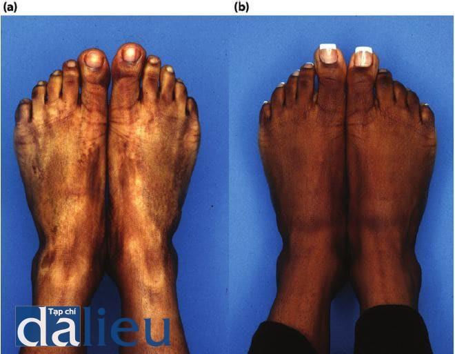 Hình 11.22 (a) Bàn chân của một bệnh nhân 10 năm sau khi bị bỏng độ một và độ hai, được điều trị bằng hydroquinone (HQ) và nhiều loại thuốc bôi ngoài da. Chú Ý vùng giảm sắc tố vồ các vùng gân mất sắc tố. Da của bệnh nhân được phân loại là da đen nguyên bản. (b) Một năm sau khi điều trị. Bệnh nhân đã trải qua Phục hồi Sức khỏe Da không dựa trên HQ đê ôn dính, kích thích vồ hòa trộn biểu bì và tế bào hắc tố. Steroid được tiền vào các khu vực xơ, và ba lần lột da tẩy da chết TCA đã thực hiện. Chú ý kết cấu được cải thiện, màu sắc đều và móng đẹp.