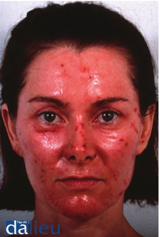 Hình 11.2 Đóng vảy. (ci) Một bệnh nhân bị sẹo mụn có thể co giãn được, (b) Má trái của bệnh nhân cho thấy việc thực hiện lột sâu trung bình kém. Chú ý đến vảy. (c) Ba tháng sau khi lột da. Bệnh nhân đã hoàn toàn lành lặn với sử dụng tích cực Phục hồi sức khỏe da dựa trên hydroquinone.