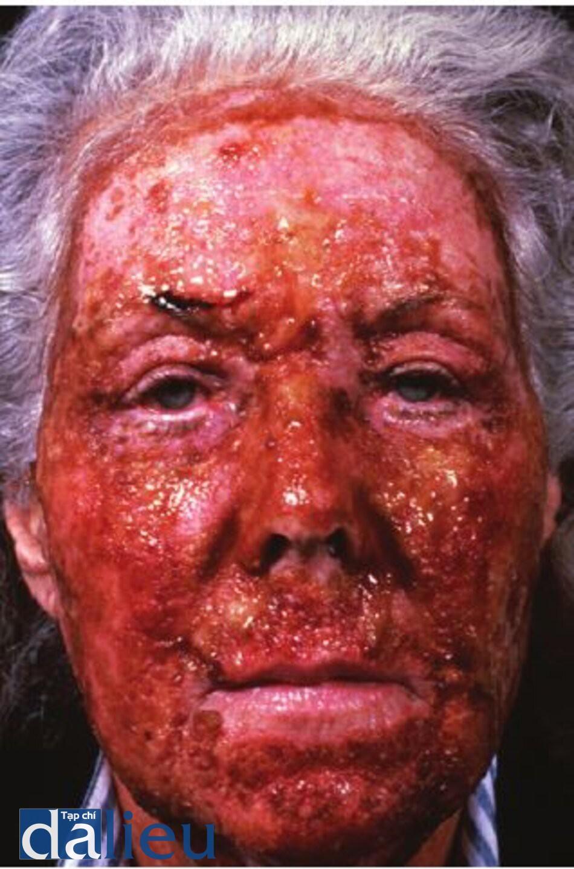 Hình 11.4 Tám ngày sau khi lột da bằng axit trichloroacetic có độ sâu trung bình. Bệnh nhân đa được điều trị bằng kháng sinh toàn thân thích hợp (dựa trên nuôi cấy) và chất sát trùng nén vờ bôi thuốc mỡ kháng sinh là Hình 11.4 Tám ngày sau khi lột da bằng axit trichloroacetic có độ sâu trung bình. Bệnh nhân đa được điều trị bằng kháng sinh toàn thân thích hợp (dựa trên nuôi cấy) và chất sát trùng nén vờ bôi thuốc mỡ kháng sinh là thuốc bôi tại chỗ.thuốc bôi tại chỗ.