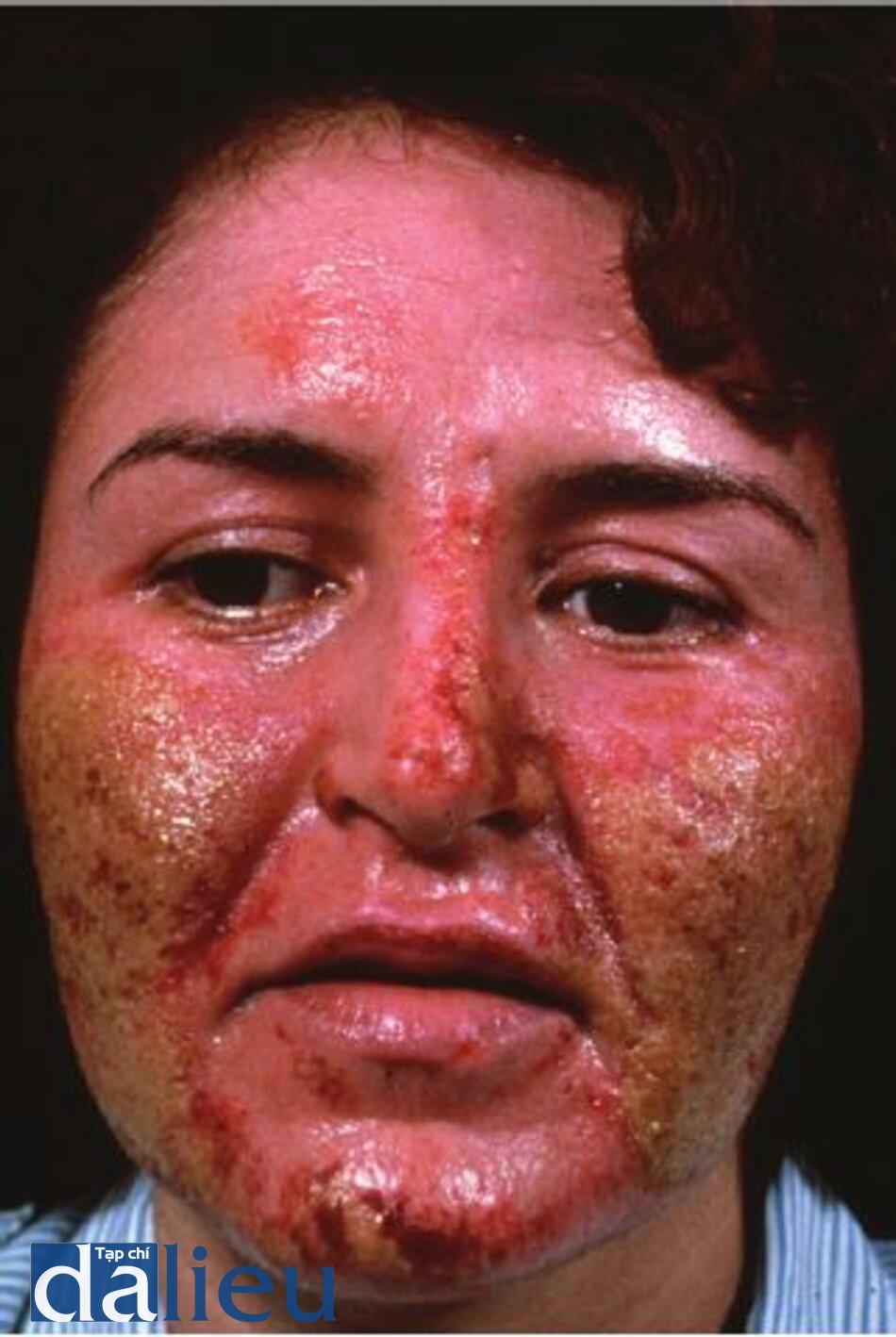 Hình 11.6 Một bệnh nhân bị nhiễm trùng 10 ngày sau khi lột da bằng axit trichloroacetic. Để ý các mảng mù trên má cho thấy nhiễm trùng. Cô ấy đã được điều trị bằng thuốc bôi kháng sinh tại chẻ và toàn thân và băng ép sát trùng.