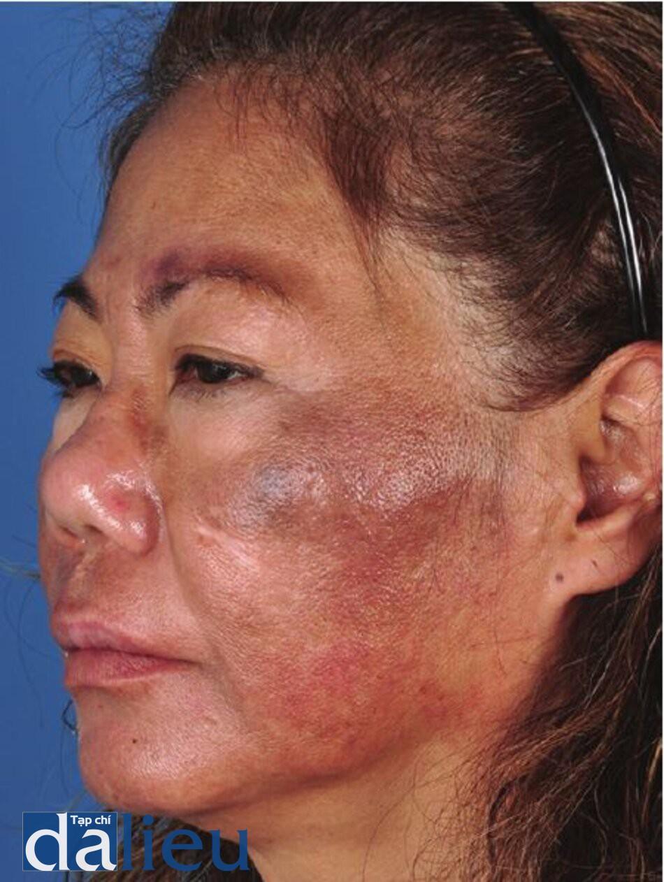 Hình 7.9 Bệnh nhân có da Châu Á lệch màu (trung bình), dày và dầu nhờn. Cô ấy được chân đoán là bị nám da, tăng sắc tố sau viêm va tái phát tăng sắc tố. Cô ấy dă dược điều trị bằng hydroquinone 4%, 8% và 10% (HQ) ở nhiều phòng khám khác nhau trong 1 năm nhưng nám ngày càng nặng hơn. Điều này cho thấy khả năng chống lại cả HQ và chứng nhạy cảm do cảm ứng và viêm do HQ.