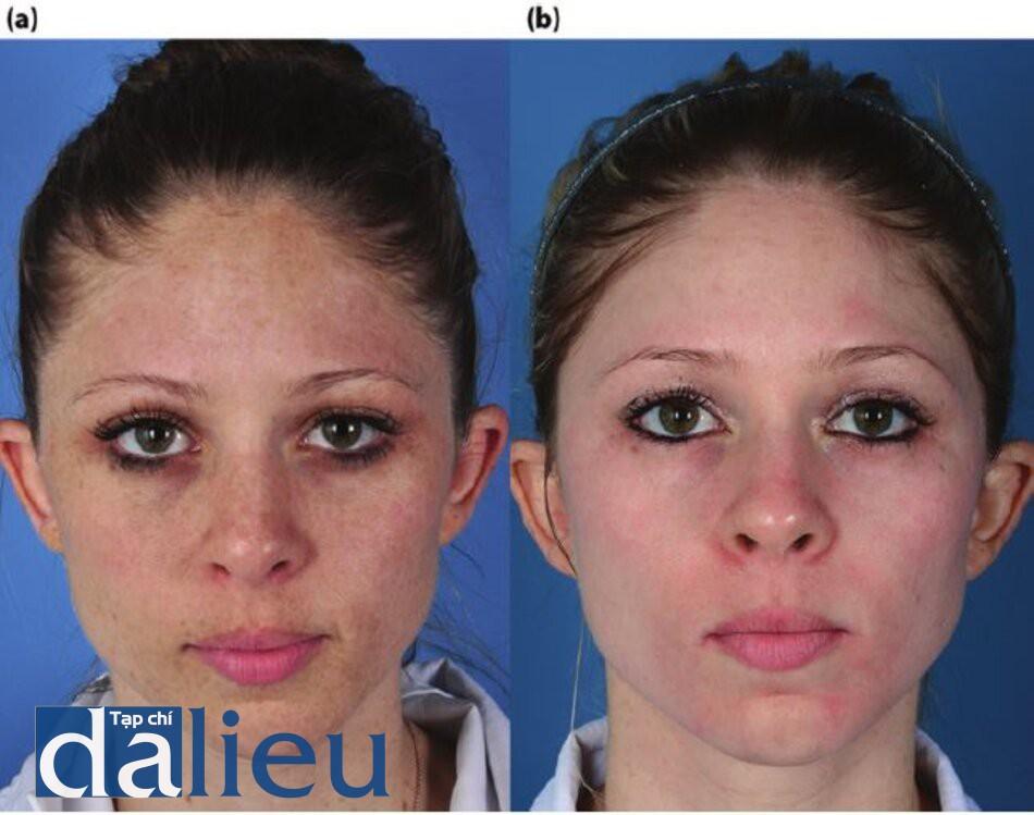 Hình 7.12 (a) Trước điều trị. Bệnh nhân có da trắng nguyên bản, dày vừa, và nhờn. Cô ấy được chẩn đoán là bị tổn thương da do ánh sáng nghiêm trọng với nốt sần, tàn nhang và dày sừng quang hóa. Cô đã được điều trị bằng zo Medical dựa trên HQ trong 5 tháng, (b) Sáu tháng sau.
