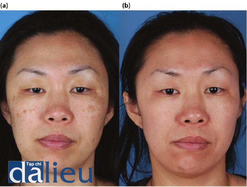 Hình 7.15 (a) Trước điều trị. Bệnh nhân có da châu Á lệch màu (trung bình), dày vì phải và không dầu. Cô được chẩn đoán là bị sạm da và nhiêu lentigo solare. (b) Một năm sau. Bệnh nhân đã được điều trị trong 5 tháng với Chương trình sức khỏe da zo vồ đã có hai lăn điêu trị với zo Retinol stimulation Peel.