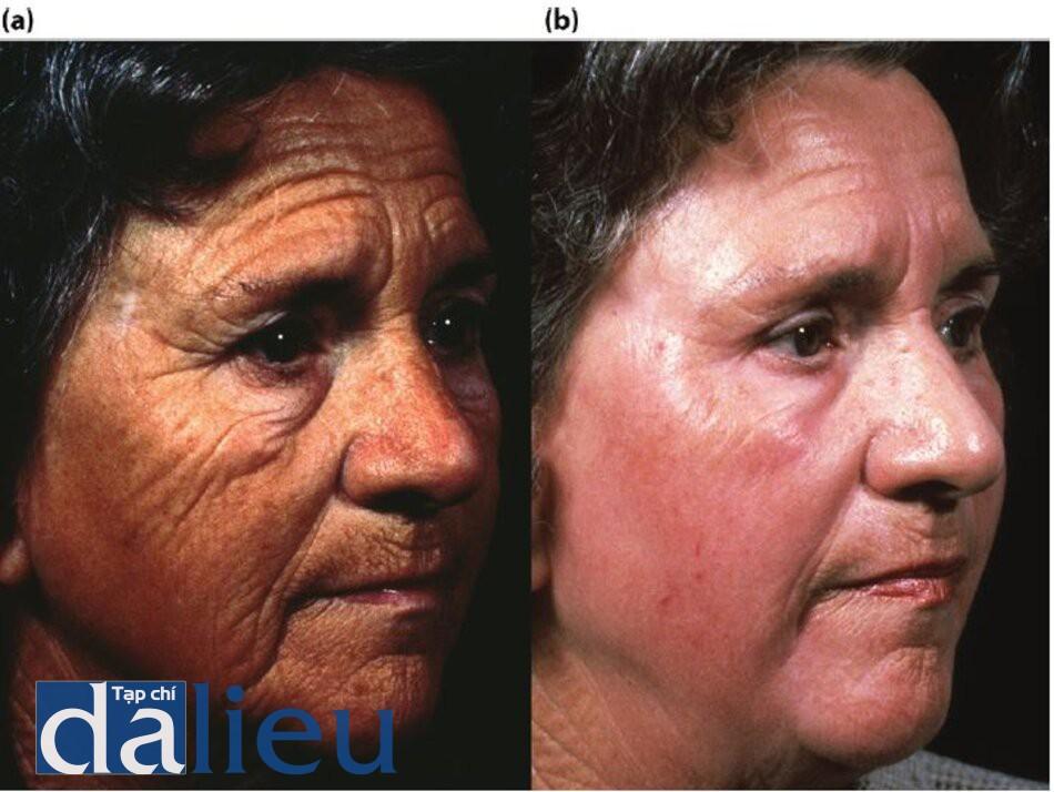 Hình 7.18 (a) Trước điều trị. Bệnh nhân có da trắng (trung bình) dày, và không dầu. Cô được chẩn đoán là mắc chứng Thoái hóa sợi elastin do ánh nắng mặt trời nghiêm trọng, (b) Một năm sau. Bệnh nhân được điều trị từ 2 đến 6 tháng với phương pháp Phục hồi Sức khỏe Da dựa trên HQ tích cực, tiếp theo là Lột da có kiểm soát độ sâu trung bình được thiết kế được thực hiện sau số tuần dưỡng da.