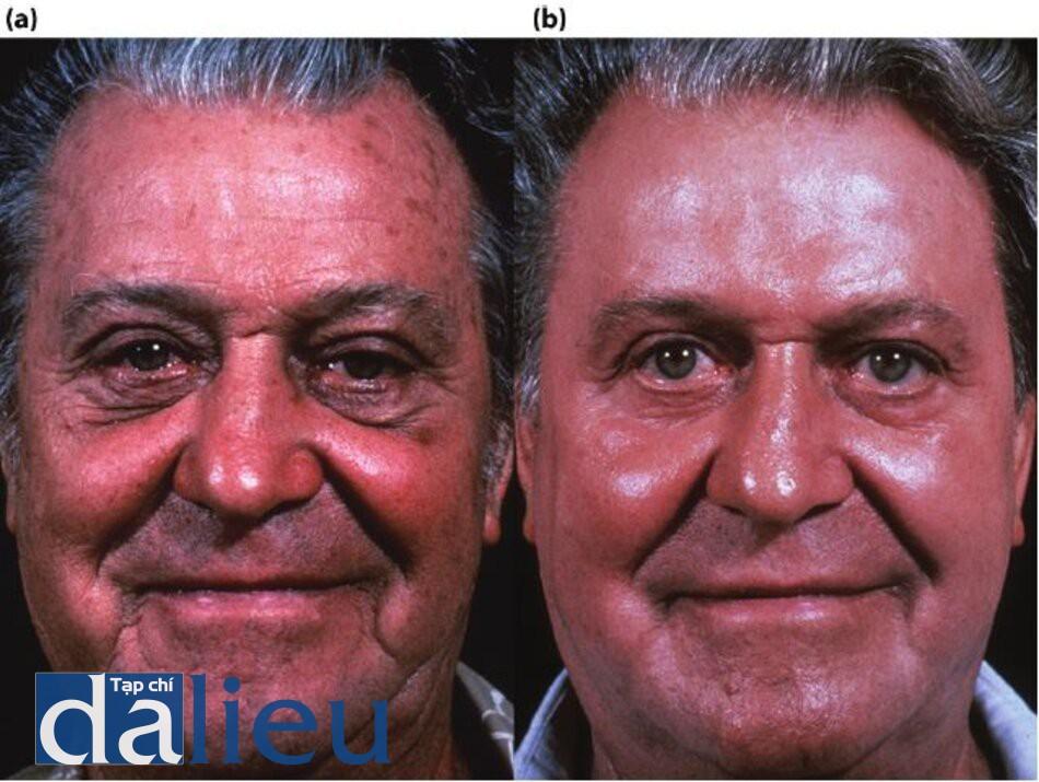 Hình 7.19 (a) Trước điều trị. Bệnh nhân có da trắng, dày vồ nhờn. Anh ấy đã được chẩn đoán là mắc bệnh lentigos, dày sừng quang hóa và đổi màu không đặc thù (rối loạn sắc tố), (b) Một năm sau. Bệnh nhân được điều trị bằng phương pháp Phục hồi Sức khỏe da dựa trên HQ tích cực, tiếp theo là Lột da sâu được thiết kế có kiểm soát zo ở độ sâu trung bình được thực hiện sau 8 tuần phục hồi sức khỏe làn da.