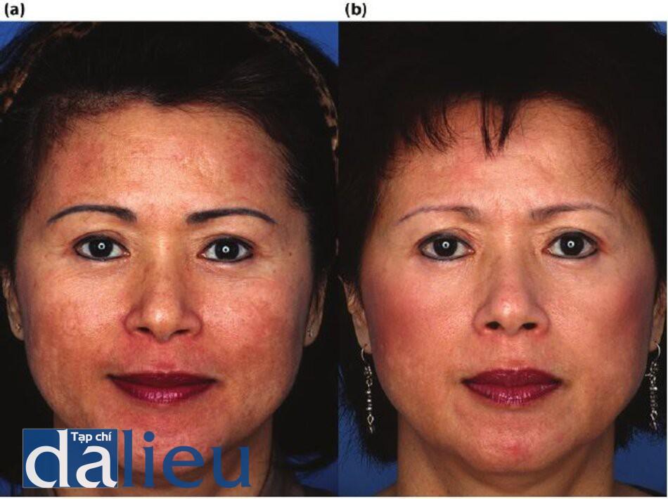 Hình 7.13 (a) Trước điều trị. Bệnh nhân có da châu Á lệch màu (trung bình), dày vừa phải và nhờn. Cô được chẩn đoán lồ bị sạm da, nhạy cảm hồ đổi màu không đặc trưng (dấu hiệu sớm của tổn thương do ánh nắng mặt trời), (b) Một năm sau. Bệnh nhân đã được điều trị trong 2 đến 3 tháng với Phục hồi Sức khỏe Da không dựa trên DC để điều trị da nhạy cảm, sau đó là 3 tháng điều trị zo dựa trên HQ vồ hai quy trình lột da kích thích zo Retinol.