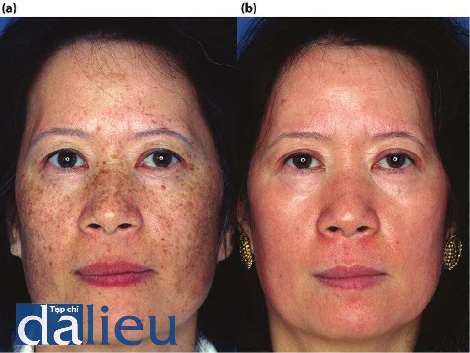 Hình 7.14 (a) Trước điều trị. Bệnh nhân có da châu Á lệch màu (nhẹ), dày trung bình, và không dầu. Cô ấy được chân đoán lồ bị tàn nhang và đôi môi phát tán. (b) Một năm sau. Bệnh nhân được điều trị tích cực trong 5 tháng với zo Y tế dựa trên HQ, tiếp theo là Lột sâu có kiểm soát zo 6 tuần sau đó.