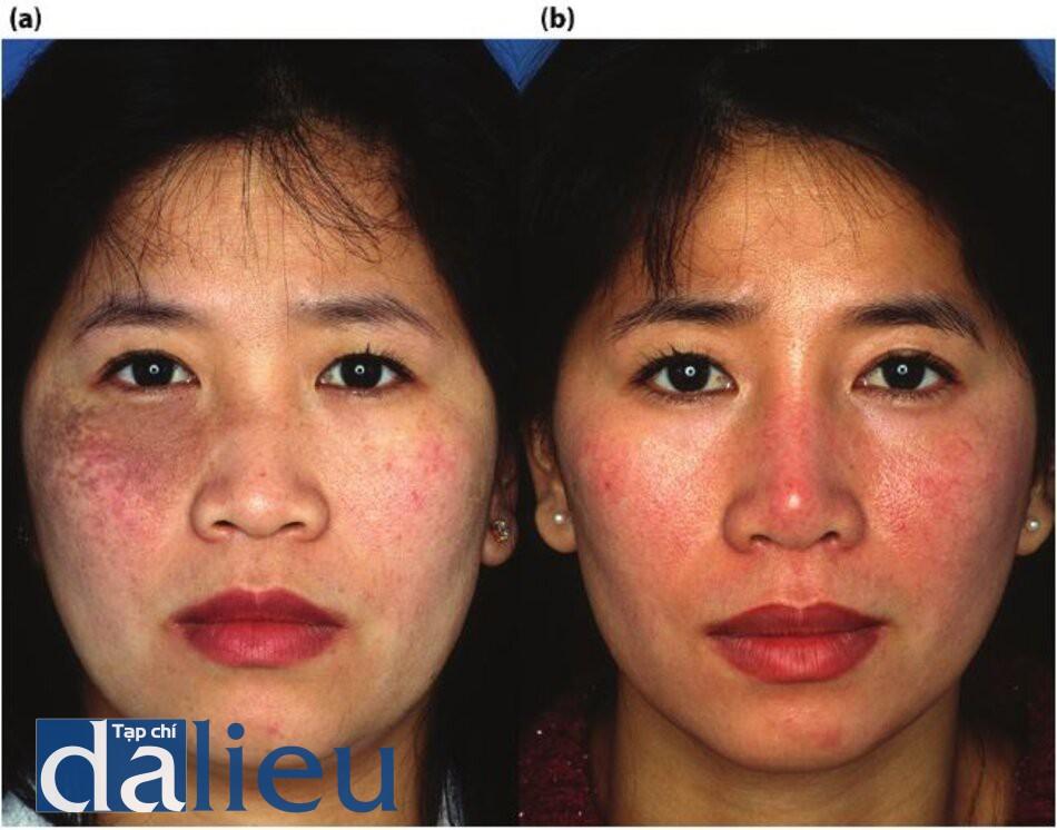 Hình 7.20 (a) Trước điều trị. Bệnh nhân có da châu Á lệch màu (da sáng) và dày vừa phải. Cô được chẩn đoán là mắc chứng bớt Ota. (b) Một năm sau. Bệnh nhân đã được điều trị bằng phương pháp Phục hồi Sức khỏe Da dựa trên HQ vì phải để ngăn ngừa tăng sắc tố sau viêm và ổn định làn da của cô ấy. Cô ấy cũng đã trải qua năm lăn Điều trị bằng laser Nd: YAG 1,064-nm Q-switched.