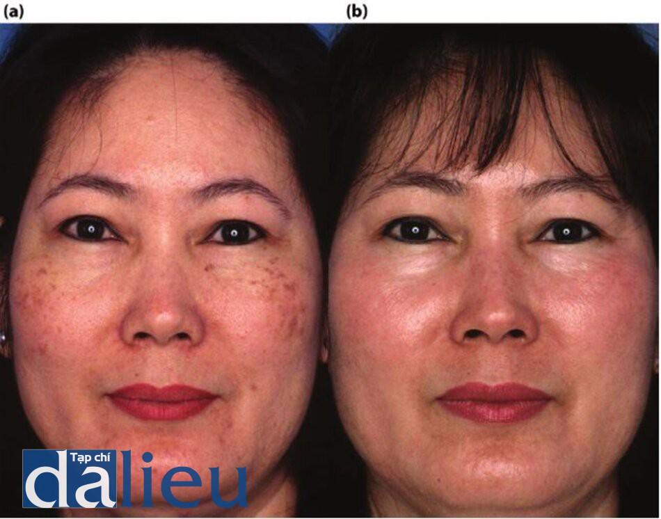 Hình 7.21 (a) Trước điều trị. Bệnh nhân có da Châu Á lệch (trung bình), dày, và nhờn. Cô được chẩn đoán lờ có sắc tố' da trên zygoma trong nhiều năm mà không được làm sáng bồng Thử nghiệm căng da Zein Obagi. Cô ấy đã không đáp ứng các phương pháp điều trị trước đây với HQ, tẩy da chết và điều trị laser xung cường độ cao tại các phòng khám khác nhau, (b) Một năm sau. Bệnh nhân được điều trị tích cực từ 2 đến 5 tháng Phục hồi sức khỏe làn da dựa trên HQ. Bốn phương pháp điều trị bằng laser Q-Switched Nd: YAG 1064nm được thực hiện định kỳ hàng tháng trong quá trình điều trị Phục hồi Sức khỏe Da.