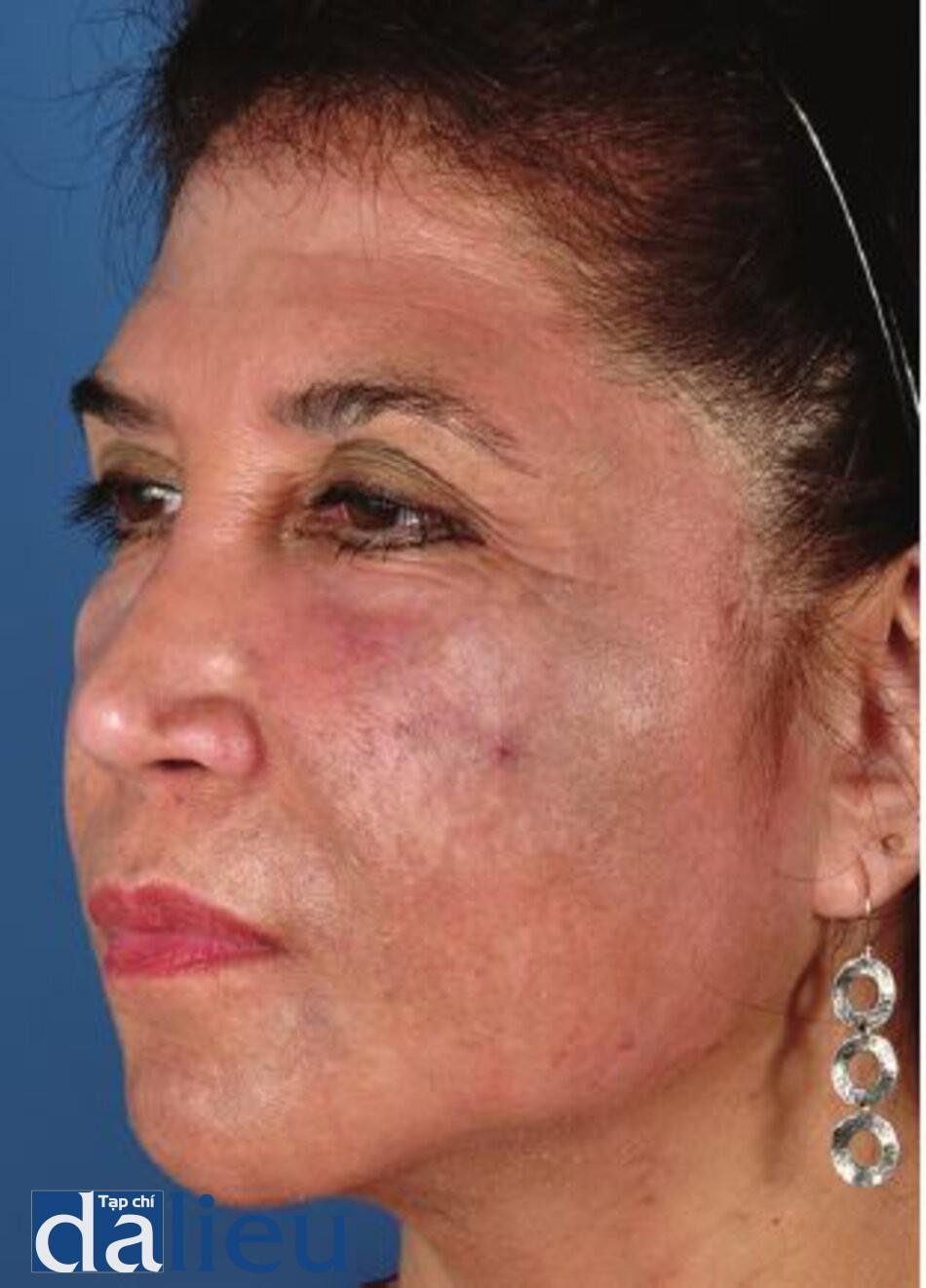 Hình 7.22 Bệnh nhân có da trắng lệch màu (tối), dày và nhờn. Bà ấy đã sử dụng 4% HQ cho nám da, không giám sát, trong 10 năm. Cô ấy được chân đoán là có bệnh ochronosis.
