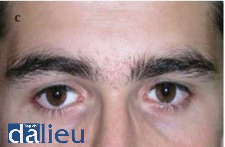 HÌNH 4.7 Các vết sẹo và vết sẹo của băng glabella (a) trước, (b) trong, và (c) sau bốn lần lột da bằng axit trichloroacetic 30%. Lớp sương trắng ở (b) cho thấy tác nhân đã đến lớp hạ bì dạng lưới.