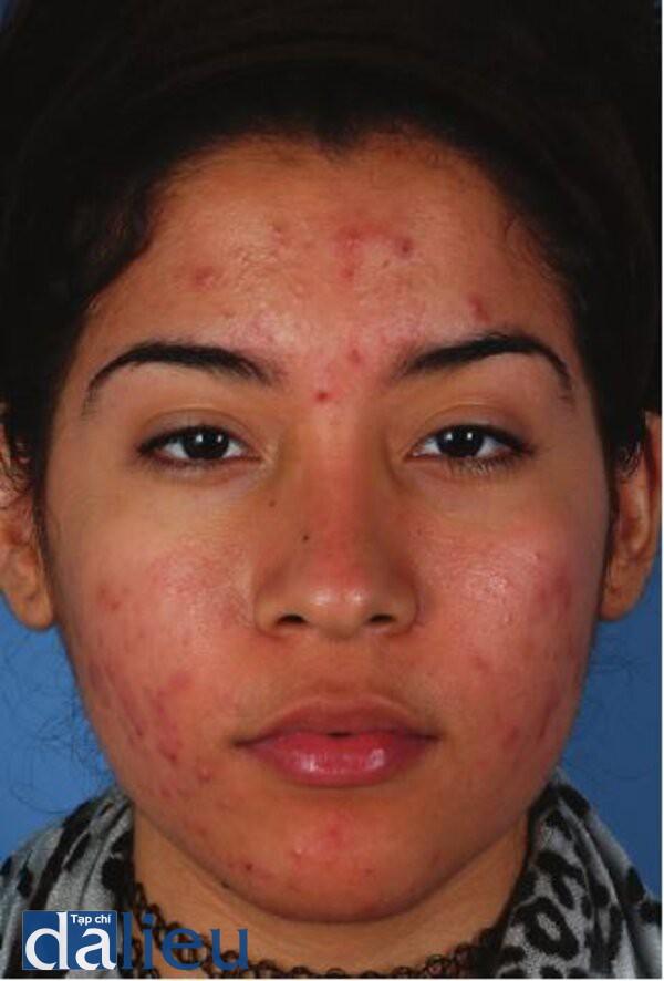Hình 4.22: Bệnh nhân da dày trung bình, nhờn