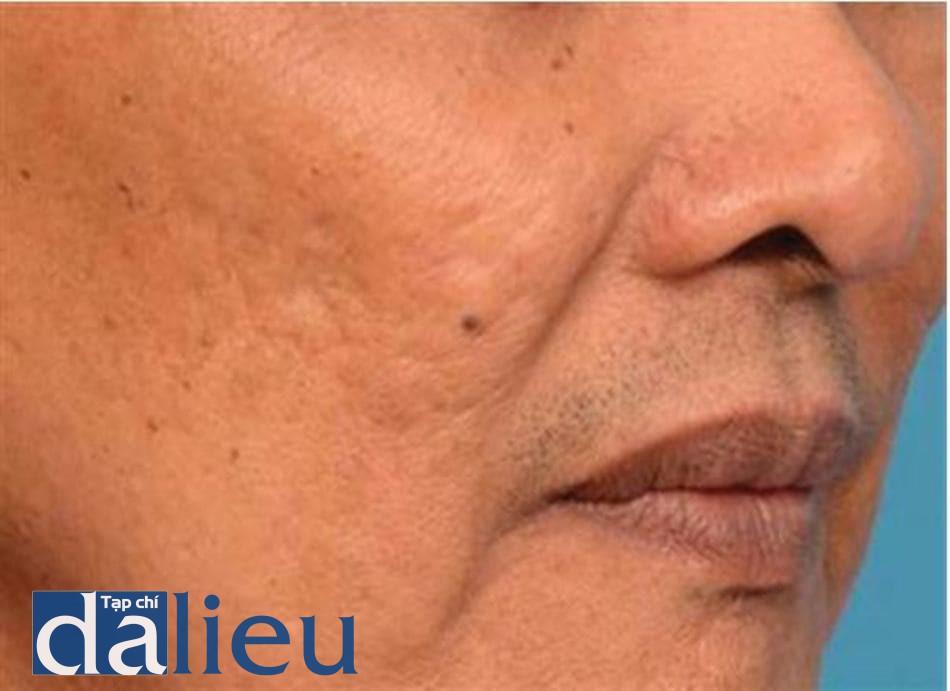 HÌNH 14.10 Trước khi điều trị với thiết bị RF vi điểm lưỡng cực (thiết bị eTwo) 80 mJpin, 64 kim, 3 lần điều trị cách nhau mỗi tháng (da type 5)