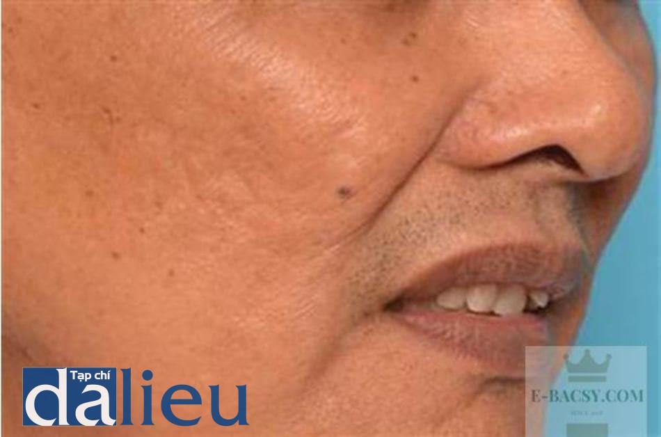 HÌNH 14.11 Sau khi điều trị với thiết bị RF vi điểm lưỡng cực