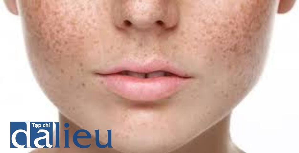 Hình ảnh minh họa sinh bệnh học về nám da