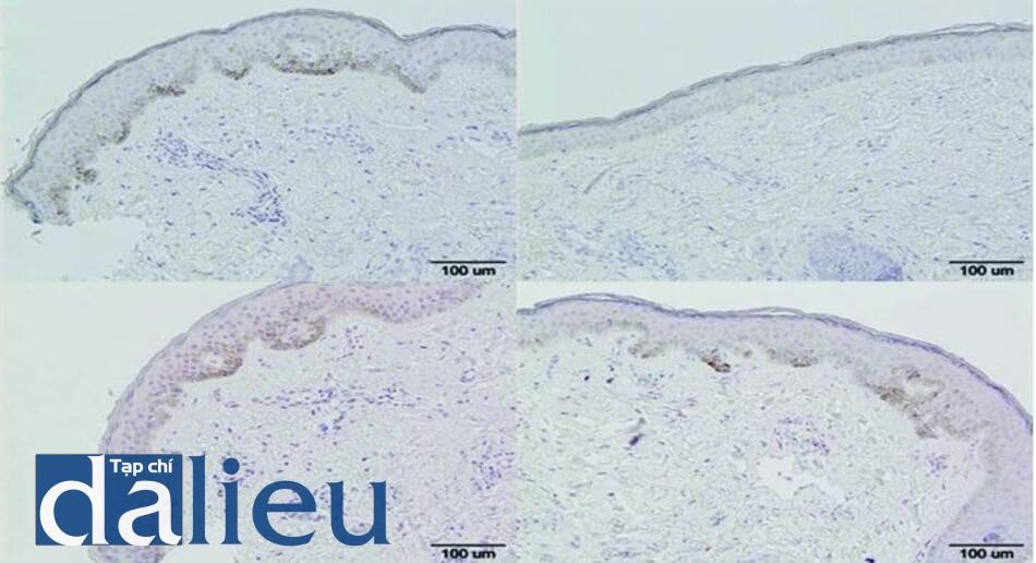 Hình 4.1 Nhuộm miễn dịch NKI-beteb và tyrosinase-related protein (TRP)-2 trước và sau điều trị với niacinamide và chiết xuất đậu nành trong 8 tuần. Nhuộm miễn dịch (a) NKI- beteb trước điều trị (x100), (b) NKI-beteb sau điều trị (x100), (c) TRP-2 trước điều trị (x100), (d) TRP-2 sau điều trị (x100) [38].