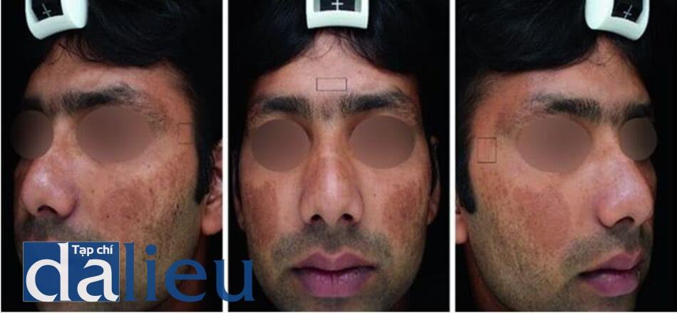Hình 8.3 Cần phải chụp ảnh mặt phẳng trán và ảnh hai bên ở góc 450 để tính aMASI. Thang điểm aMASI của bệnh nhân này được tính bởi thuật toán máy tính là 8.6 điểm