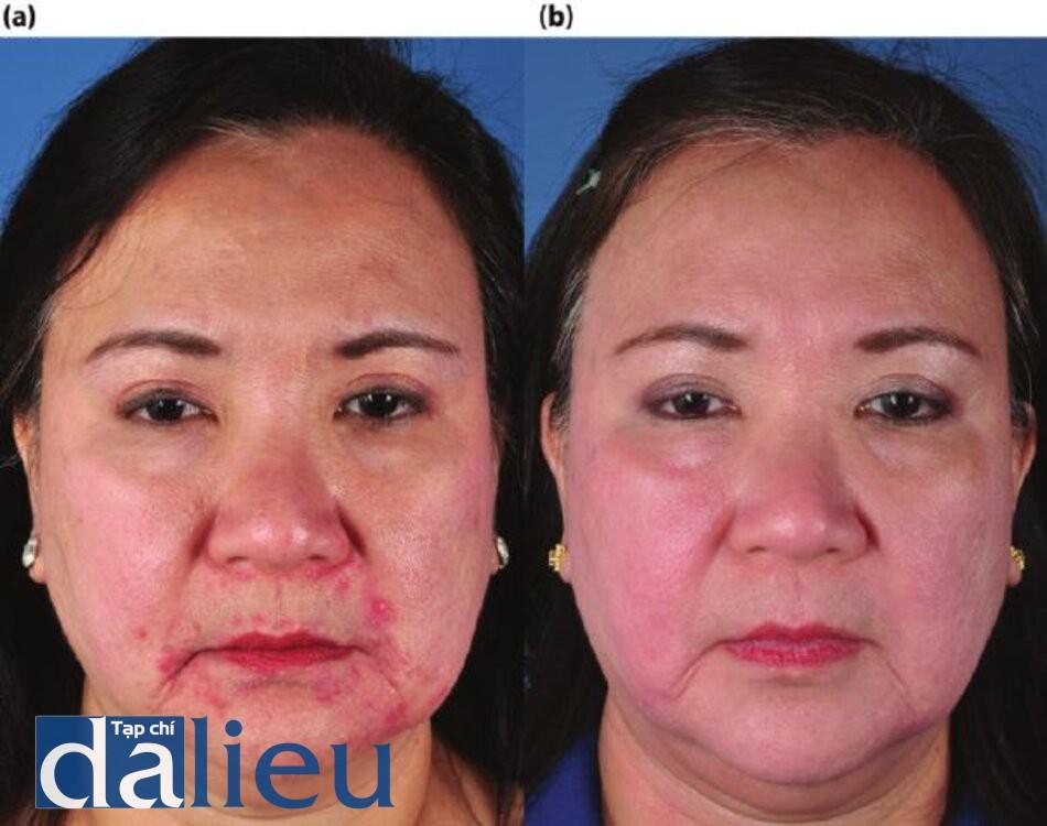 Bệnh nhân bị trứng cá đỏ, lỗ chân lông giãn rộng, tăng sản tuyến bã và tăng sắc tố sau viêm, sự phục hồi sau 5 tháng