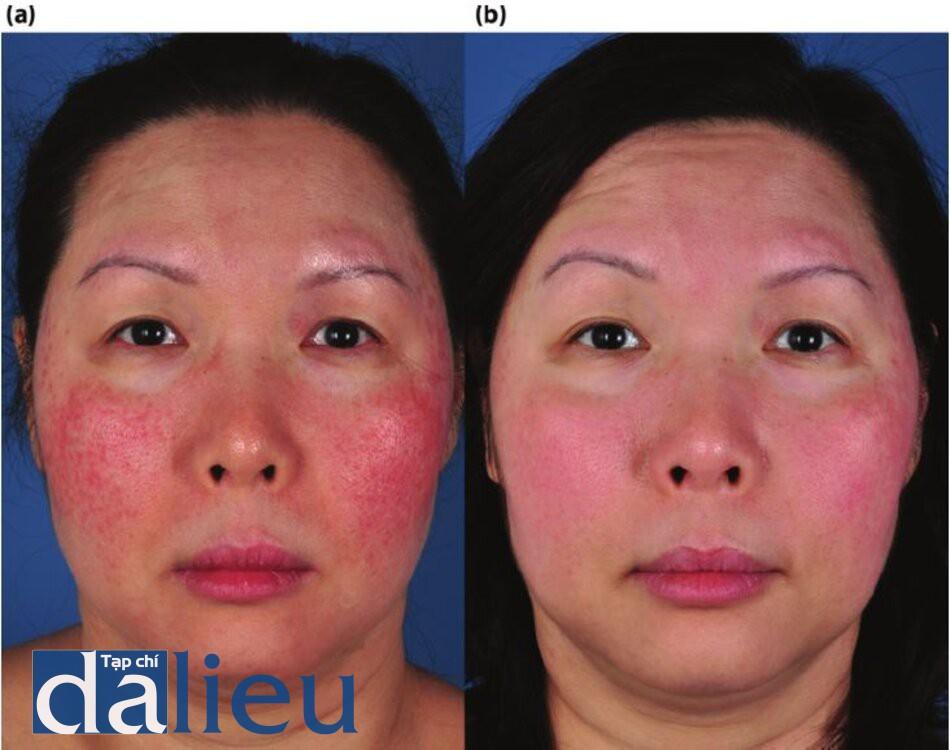 Bệnh nhân bịtrứng cá đỏ, với biểu hiện hồng ban, giãn mạch và da nhạy cảm sau 4 tháng điều trị