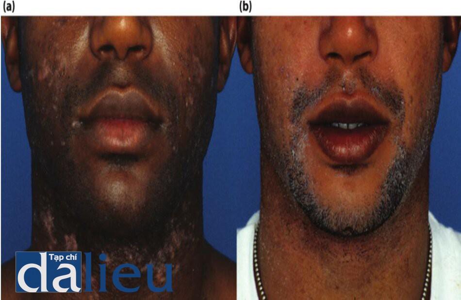 Bệnh nhân được chuẩn đoán là viêm nang lông giả và sự phục hồi sau 5 tháng