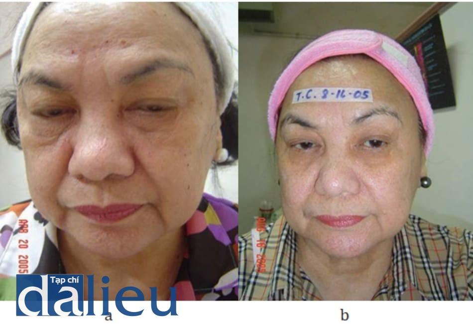 Hình 10.1 (a) bệnh nhân nữ 70 tuổi (trước khi điều trị) được điều trị xệ da, tăng sắc tố và trẻ hóa da với khoảng cách điều trị là mỗi tháng. (b) Ảnh bệnh nhân sau 6 lần điều trị bằng hỗn hợp mesolift và mesoglow. Da trông sáng, săn chắc và ít nếp nhăn hơn.