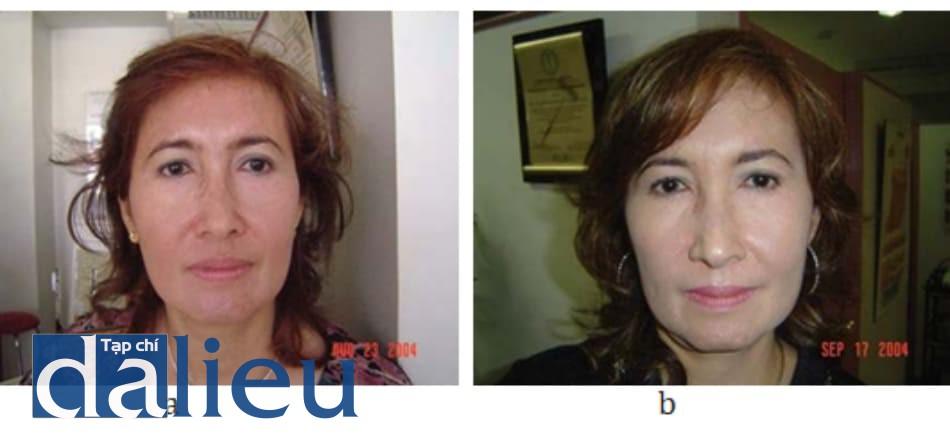 Hình 10.2 (a) bệnh nhân nữ 53 tuổi (ảnh trước khi điều trị) được điều trị tăng sắc tố không đều màu và trẻ hóa da. Khoảng cách điều trị 3 tuần. (b) Ảnh chụp sau 4 lần điều trị bằng hỗn hợp mesolift và mesoglow. Bệnh nhân trông trẻ hơn với da săn, chắc, sáng hơn.