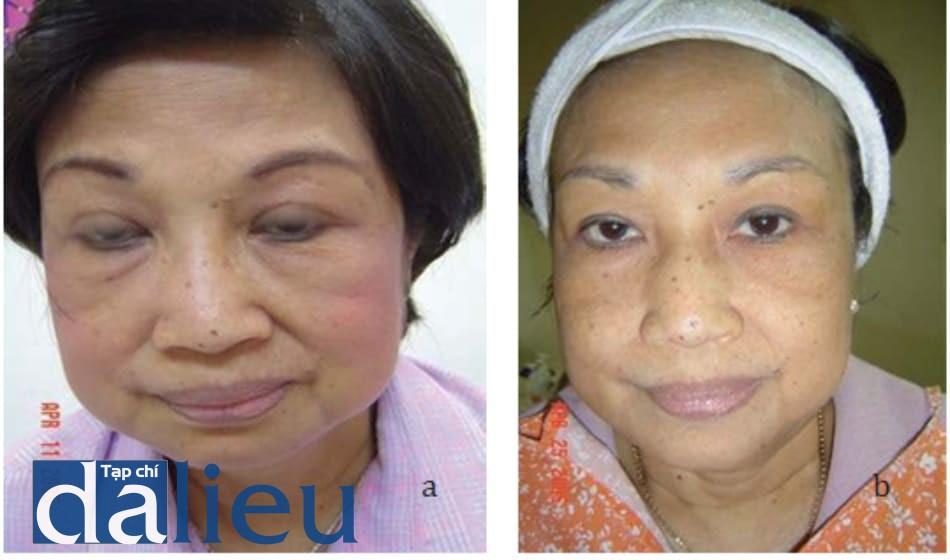 Hình 10.5 (a) Tiêu mỡ bọng mắt bằng phương pháp mesosculpt. Ảnh chụp trước điều trị ở bệnh nhân nữ 51 tuổi. (b) kết quả 2 tuần sau lần điều trị đầu tiên. Bọng mắt đã được làm phẳng rất nhiều.