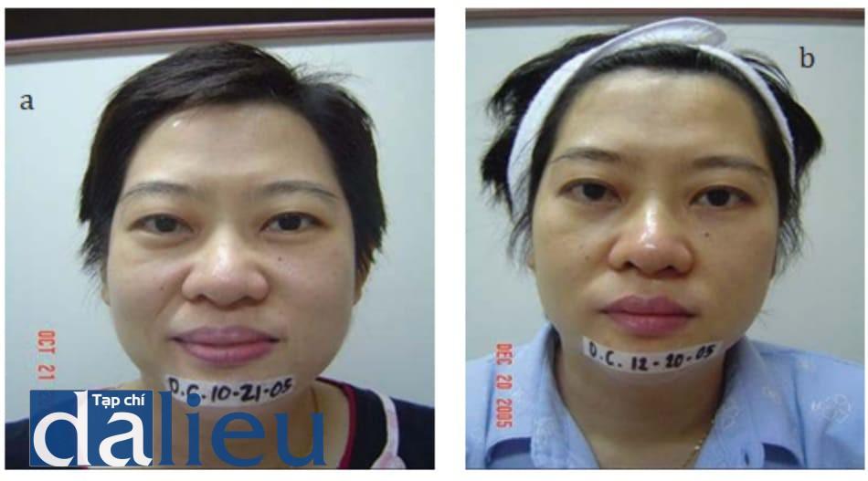 Hình 10.6 (a) bệnh nhân nữ 42 tuổi được điều trị bọng mắt và mỡ thừa vùng hàm và trẻ hóa da. Hỗn hợp mesosculpt và mesoglow được sử dụng với khoảng cách điều trị 2 tuần. (b) Kết quả sau 4 lần điều trị, bọng mỡ được làm phẳng, giảm kích thước vùng hàm và da trông sáng hơn.