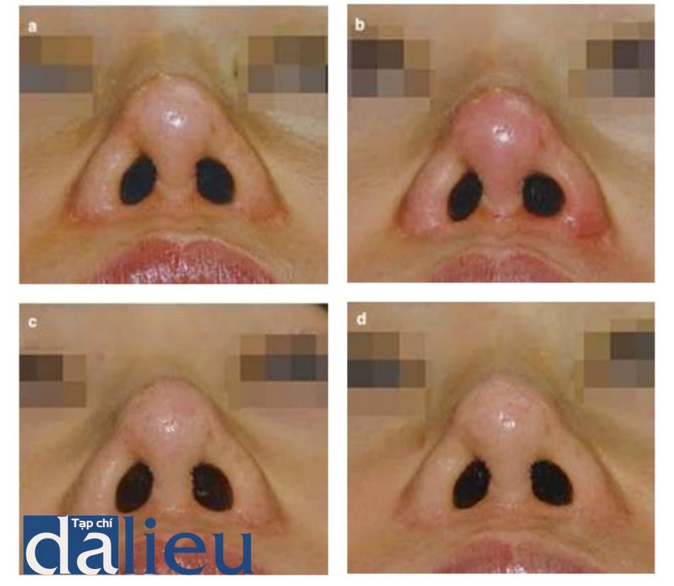 Hình 1.1 Hồng ban từ phẫu thuật mũi hở trước đó, tự lành. Bệnh nhân được phẫu thuật mũi hở và cắt giảm cánh mũi trước đó. Tiêm HA 0.2 cc, hồng ban kéo dài 2 tuần và tự lành sau 2 tháng. Hồng ban tiến triển sau phẫu thuật mũi do thay đổi hệ mạch. (a) Tiền phẫu. (b) Hồng ban ngay sau tiêm. (c) 2 tuần sau tiêm, hồng ban khu trú kéo dài. (d) Hồng ban biến mất 2 tháng sau tiêm.