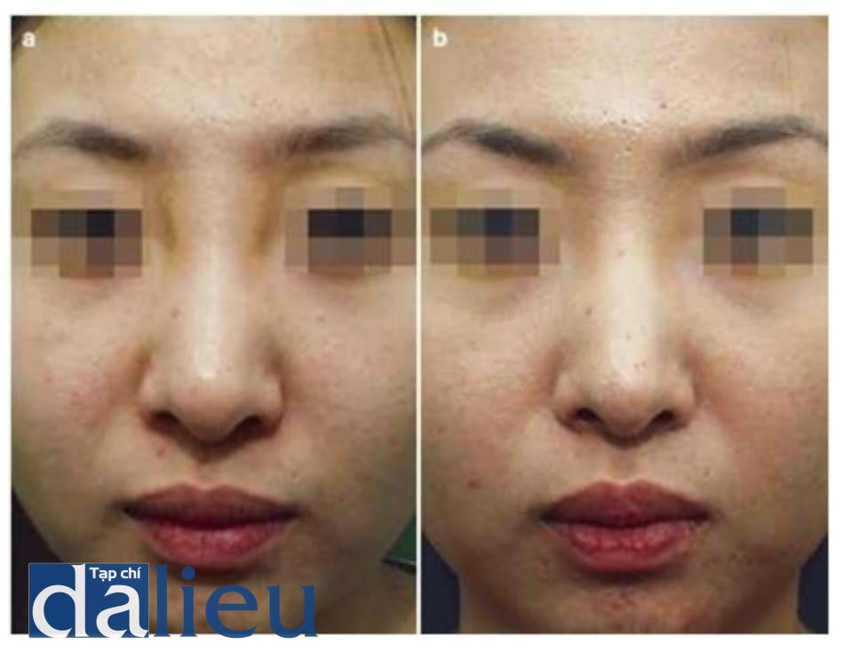 Hình 1.13 Chất filler HA di chuyển và quá trình loại bỏ. Chất filler HA di chuyển tới gốc mũi và làm nó trông rộng hơn, do đó cần phải loại bỏ. (a) Trước xử lý. (b) Sau xử lý
