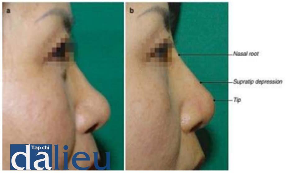 Hình 1.17 Vị trí tiêm filler ở mũi. (a) Trước tiêm. (b) Sau tiêm: gốc mũi, hạ phần trên chóp mũi, chóp mũi