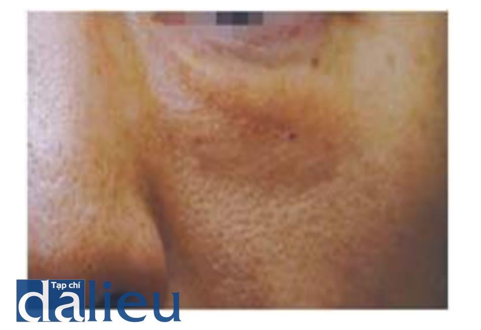 Hình 1.22 Hiệu ứng trong suốt khi tiêm filler canxi hydroxyapatit. Chất filler màu trắng thấy rõ trên da mỏng sau khi tiêm filler để chỉnh rãnh lệ