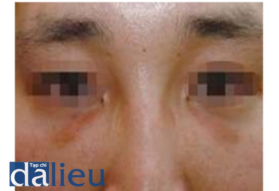Hình 1.23 Hiệu ứng trong suốt khi tiêm filler canxi hydroxyapatit. Fill- er được tiêm chỉnh rãnh lệ