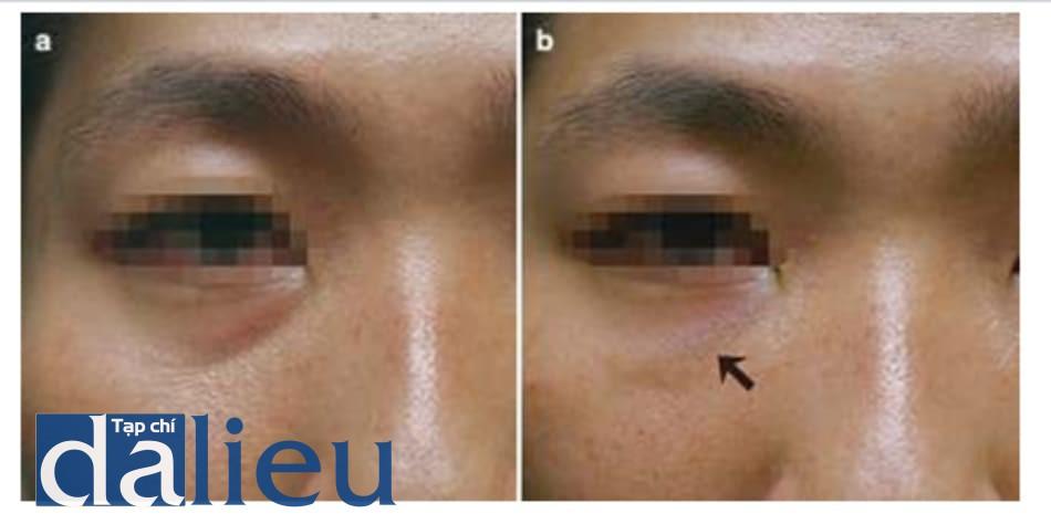 Hình 1.27 Hiệu ứng Tyndall do filler HA. 2 tháng sau tiêm filler HA vào rãnh lệ, rãnh được chỉnh, nhưng thấy hiệu ứng Tyndall phía bên phải. (a) Trước tiêm. (b) 2 tháng sau tiêm