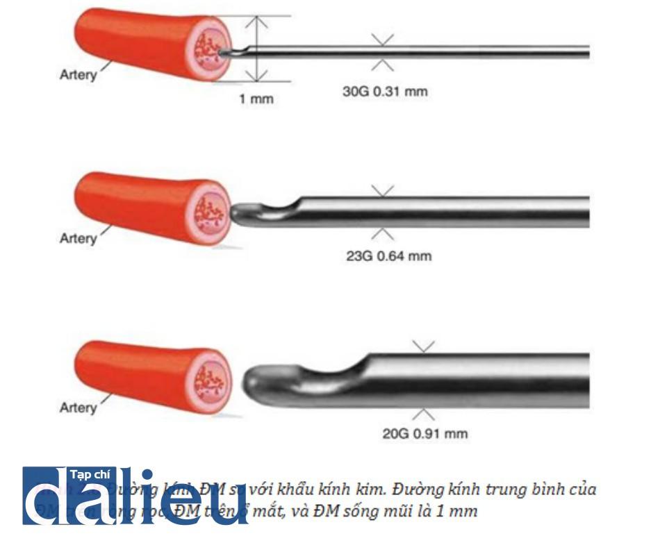 Hình 2.8 Đường kính ĐM so với khẩu kính kim. Đường kính trung bình của ĐM trên ròng rọc, ĐM trên ổ mắt, và ĐM sống mũi là 1 mm