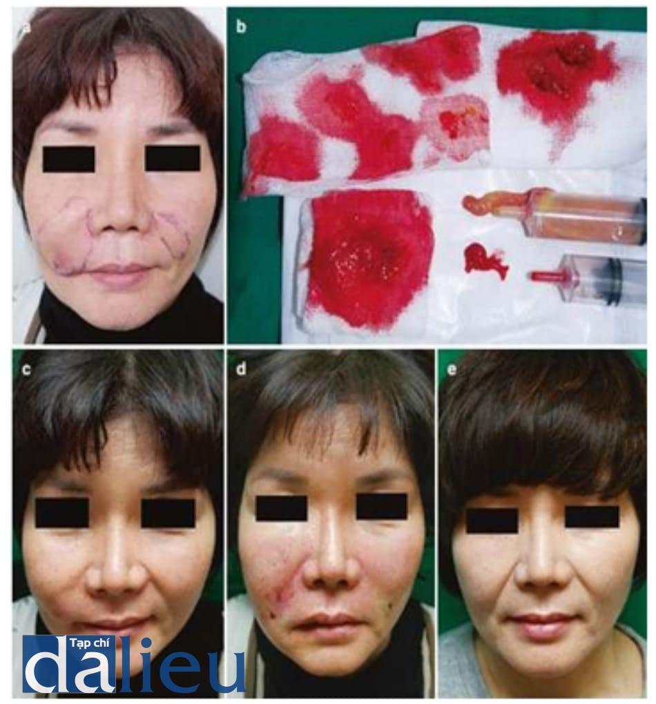 Hình 3.13 U hạt thâm nhiễm 6 năm sau tiêm chất filler vĩnh viễn. (a) Vẽ thiết kế trước thủ thuật. (b) U hạt thâm nhiễm được loại bỏ bằng chọc hút áp lực âm. Thấy được filler và các tế bào viêm. (c) Tiền phẫu. (d) Hình ảnh ngay sau phẫu thuật. (e) Hình ảnh 2 tháng hậu phẫu