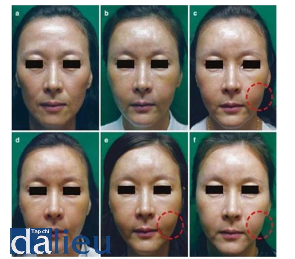 Hình 3.3 Mẫn cảm do filler sau tiêm filler HA. (a) Trước tiêm. (b) 12 ngày sau tiêm vào má, rãnh mũi môi, nếp mũi má, trán và thái dương. (c) Má bên trái sưng vào ngày 14 sau tiêm. (d) Triệu chứng giảm vào ngày 18 sau tiêm. (e) Sưng tái phát vào ngày 25 sau tiêm. (f) Sưng tái phát vào ngày 71 sau tiêm
