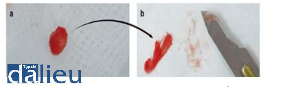 Hình 3.6 U hạt do filler sau tiêm filler HA. 2 năm sau khi tiêm chất filler HA. (a) Khối nang. (b) Chất filler HA hiện diện trong nang